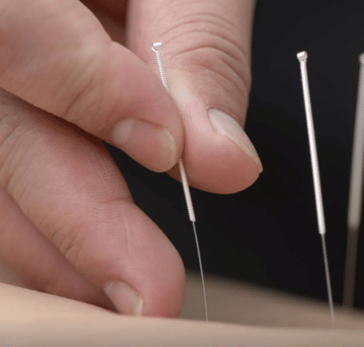 Wist u dat acupunctuur tegen oorsuizen werkt?